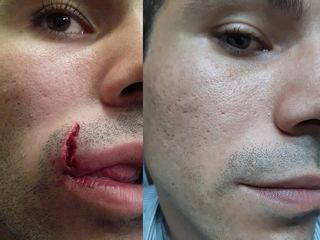 Pre e Post revisione chirurgica labbro