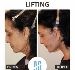 lifting viso