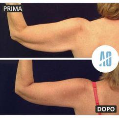 Liposuzione - Dott. Orlandi Alberto