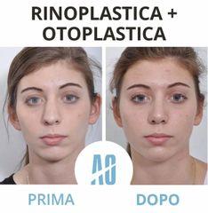 Otoplastica - Dott. Orlandi Alberto