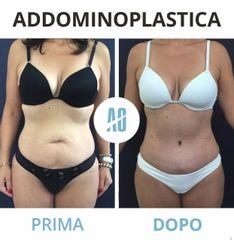 Addominoplastica - Dott. Orlandi Alberto
