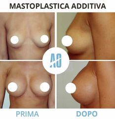 Mastoplastica additiva - Dott. Orlandi Alberto