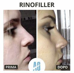 Rinofiller - Dott. Orlandi Alberto