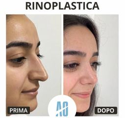 Rinoplastica - Dott. Orlandi Alberto