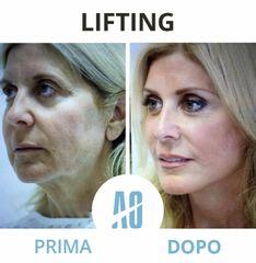 Lifting - Dott. Orlandi Alberto