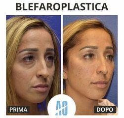 Blefaroplastica - Dott. Orlandi Alberto