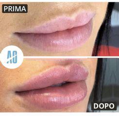 Filler labbra - Dott. Orlandi Alberto