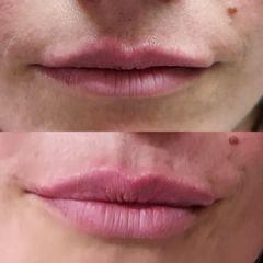 Filler labbra - Dott. Antonio Castagna