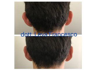 Otoplastica - 305858