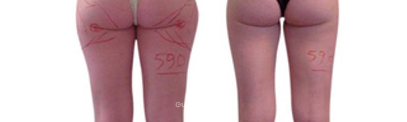 Liposuzione Laser Assitita - Prima e Dopo