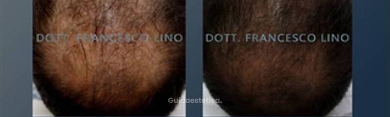 Biostimolazione capelli