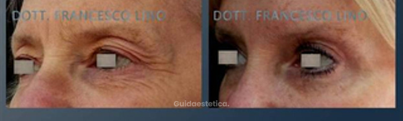 Blefaroplastica superiore, botox e peeling