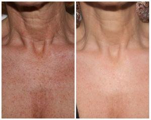 Peeling collo prima e dopo