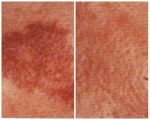 Angioma prima e dopo