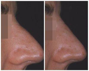 Dismorfismo naso