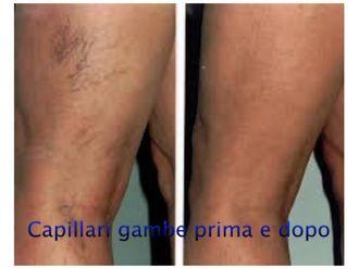 Capillari-760625