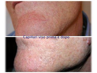 Capillari-760626
