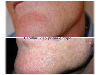 Capillari viso prima e dopo
