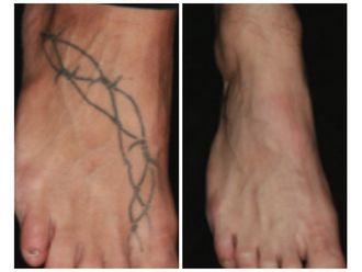 Rimozione tatuaggi-760633