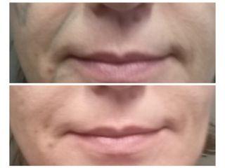 Nasogeniene prima e dopo