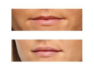 filler ialuronico labbra prima e dopo