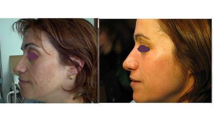 Macchie pelle prima e dopo
