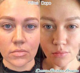 Lifting del viso non chirurgico prima dopo