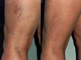 capillari prima e dopo