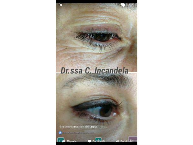 Dr.ssa Cinzia Incandela