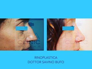 Rinoplastica - Dott. Savino Bufo
