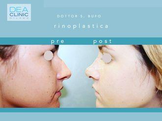 Rinoplastica-790347