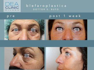 Blefaroplastica-790351