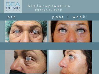 Blefaroplastica - Dott. Savino Bufo