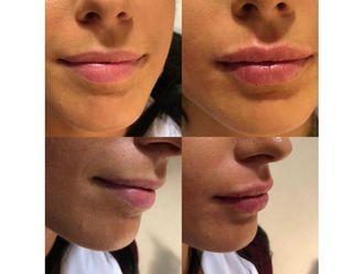 Filler labbra-769582