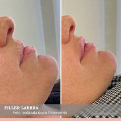 Filler labbra - The Swiss Clinic