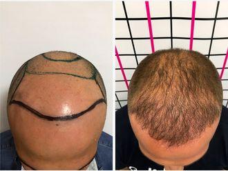 Trapianto capelli-762029