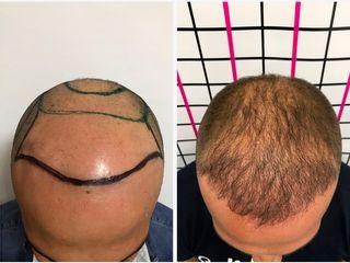 Autotrapianto capelli prima e dopo