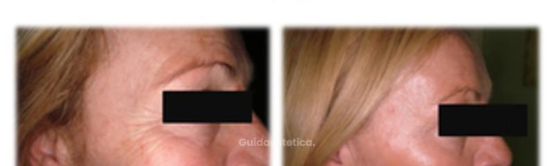 Botox perioculare