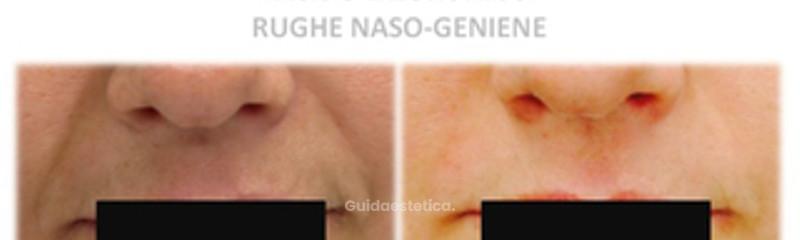 Acido ialuronico naso-geniene