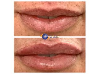 Laser Aging Skin Solution Ferrara