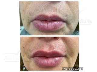 Pre e post filler labbra