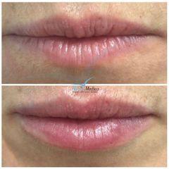 Aumento volumetrico delle labbra con effetto naturale.