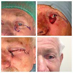 Chirurgia ricostruttiva oculoplastica