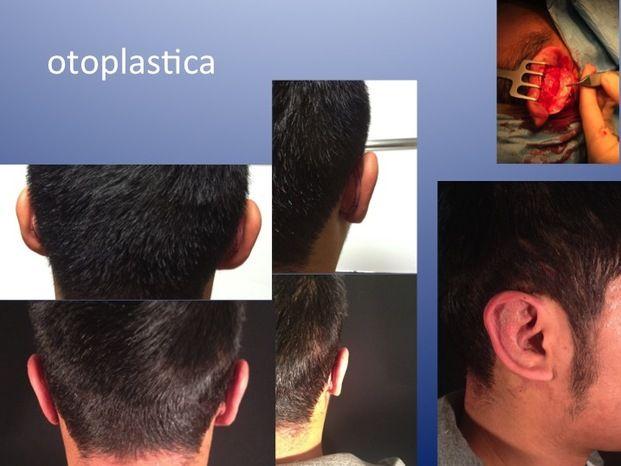 Dr. Lapalorcia, Studio Di Chirurgia Plastica