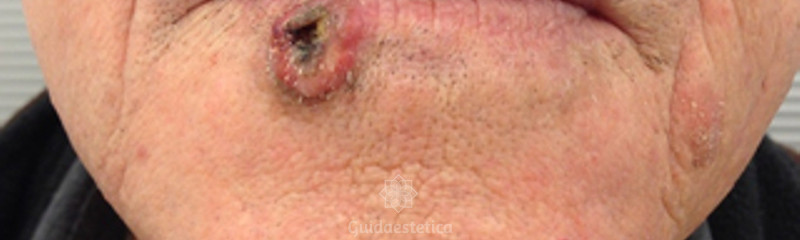 Epitelioma labbro inferiore