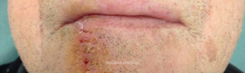 Rimozione epitelioma