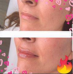 Filler labbra prima dopo