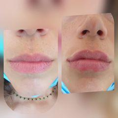 Aumento volume labbra prima dopo