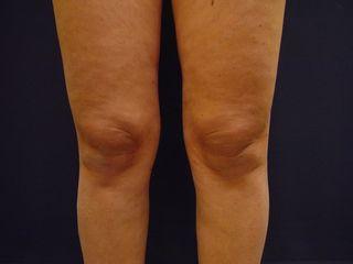Liposcultura ginocchia post