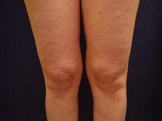 Liposcultura ginocchia pre